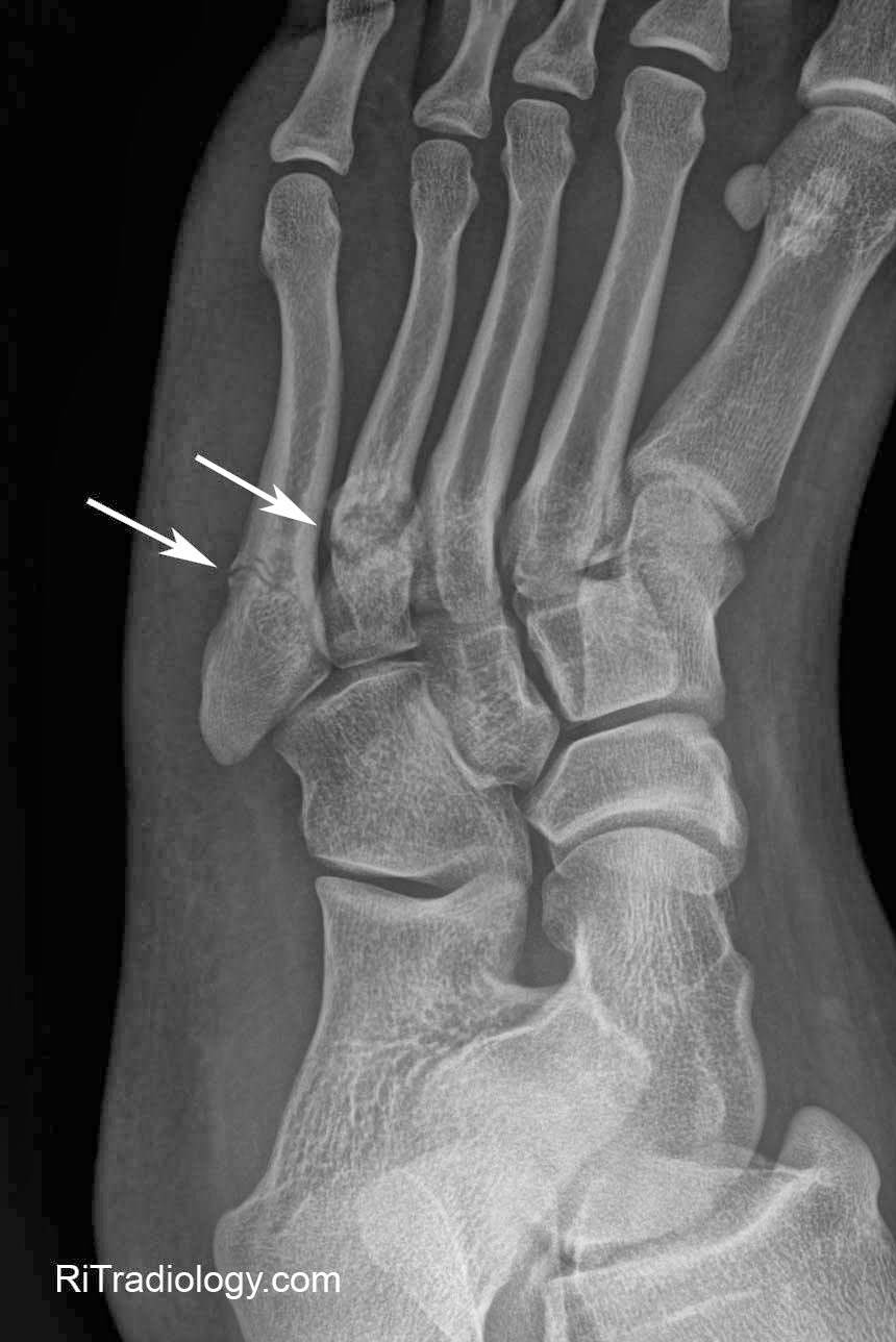 Stress Fracture Foot Surgery