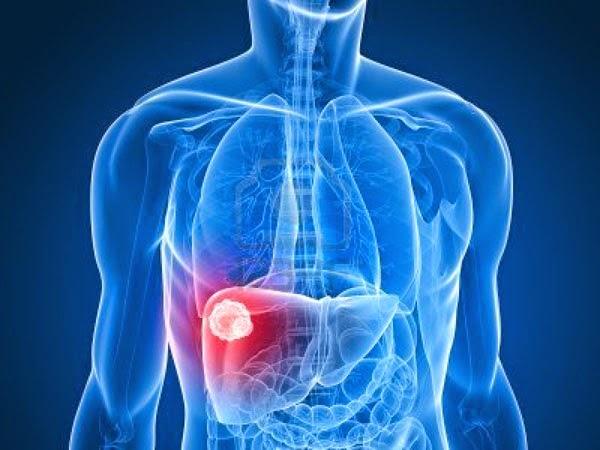 6 Jenis Hepatitis, dari Gejala hingga Penularannya