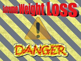 Extreme Weight Loss Danger