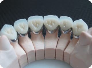 mài răng bọc sứ có đau không
