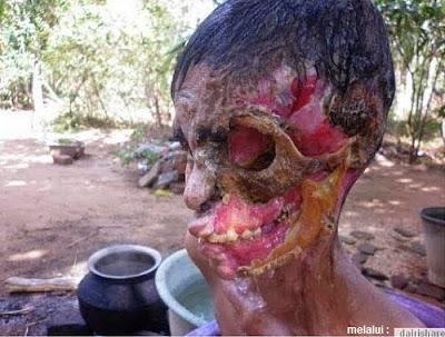 Penyakit Langka Pemakan Daging Manusia dan Fotonya