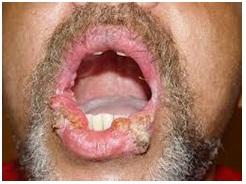 Obat Penyakit Kanker Payudara