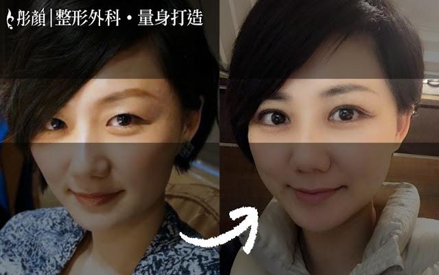 彤顏診所-割雙眼皮-開眼頭-雙眼皮手術推薦-雙眼皮推薦-中壢整形外科