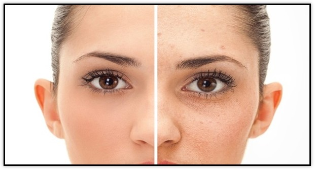 How To Eliminate Dark Spots From Acne Naturally<br/>