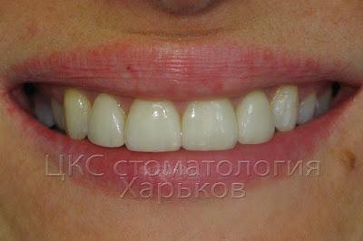 Фото улыбки после завершения лечения
