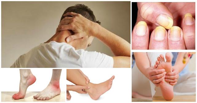 Waspadalah !! 7 Gejala Tubuh Akibat Kolesterol Tinggi Yang Tidak Anda Sadari. Bagikan Informasi Penting Ini !