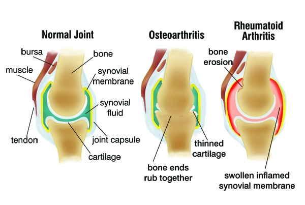 Apa arthritis?