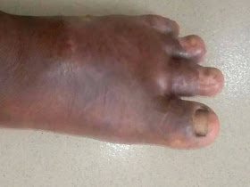 DIABETIC FOOT ULCER during treatment