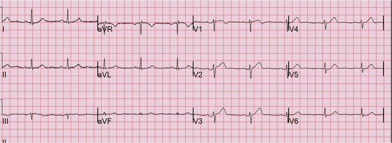 dr smith s ecg blog missed stemi spontaneously reperfused