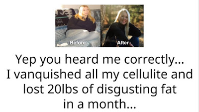Cellulite Destroyer System Review
