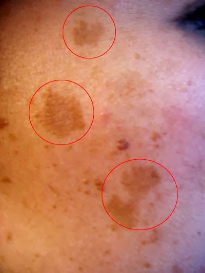 Picture of melasma hyperpigmentation on the face