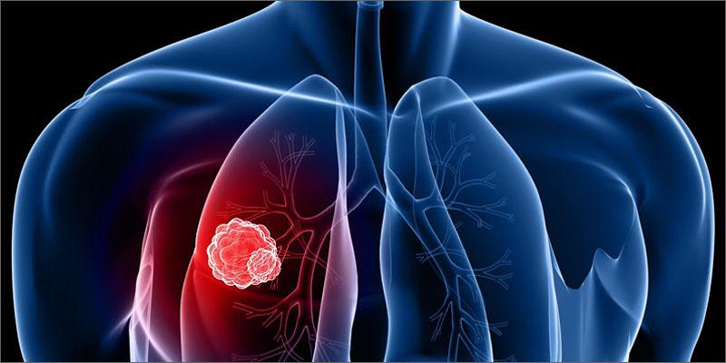 Cara Mengatasi Penyakit: Cara Mengobati Kanker Paru-paru ...