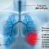 Obat Herbal Legionnaires
