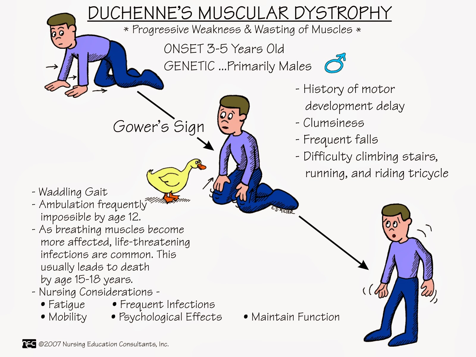 Duchenne Muscular Dystrophy Symptoms Management And Prognosis Nurses Notes Ms Nursing Mnemonics