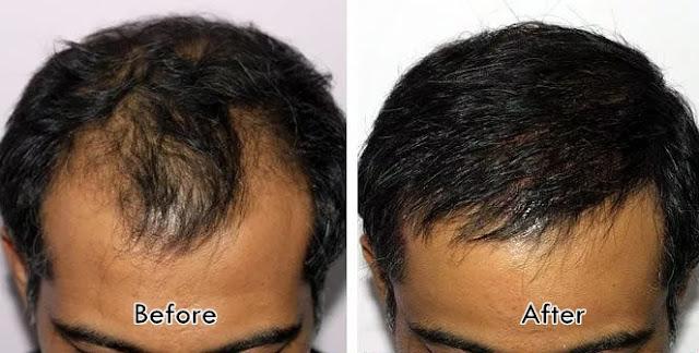 Before After Perawatan Rambut Botak