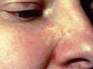 Morpheaform Basal Cell Carcinoma Pictures, Symptoms, Causes, Prognosis, Treatment