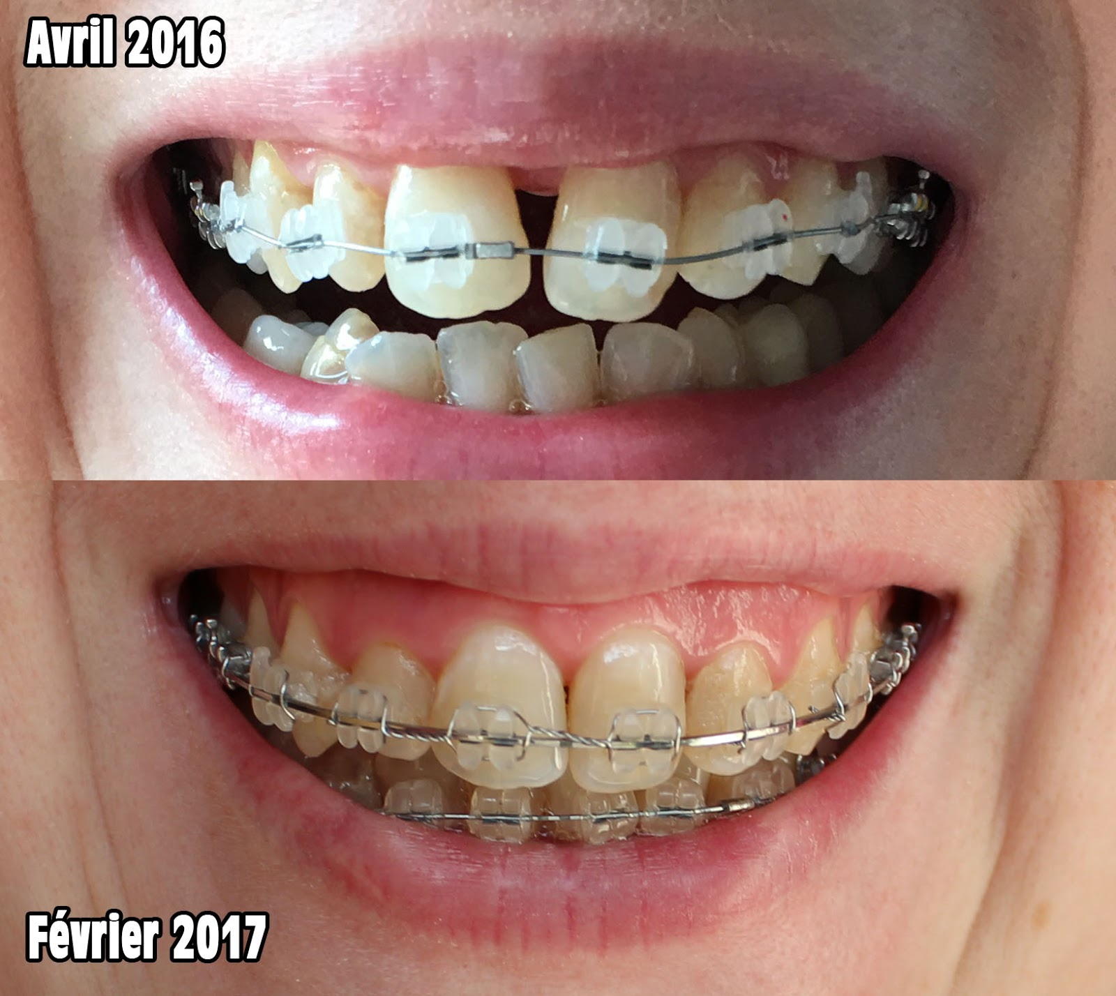 traitement orthodontique adulte