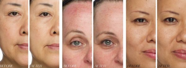Jouve Before After