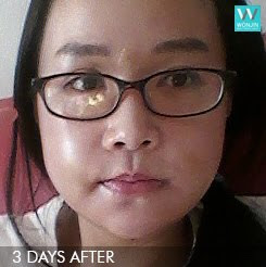 짱이뻐! - Korean Best Face Contouring For The New Me