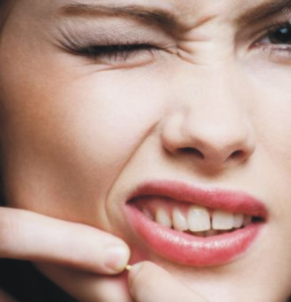 9 Cara Cepat Menghilangkan Bekas Jerawat Di Dada Secara: Cara Menghilangkan Jerawat Secara Alami