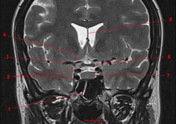Sindrome de la silla turca y la importancia de la RMN ~ INRA