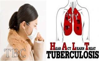 tanaman dan buat untuk mengobati TBC
