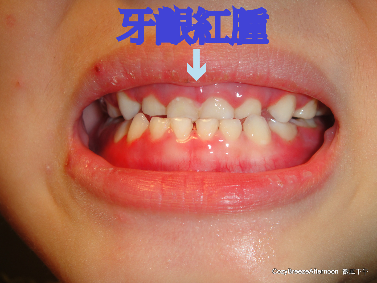 微風下午 : 急性皰疹性口腔牙齦炎
