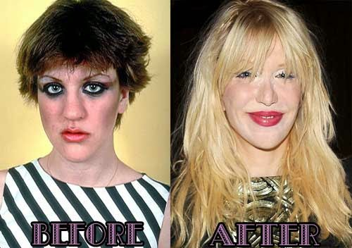 Courtney Love Plastic Surgery Had Done Before And After