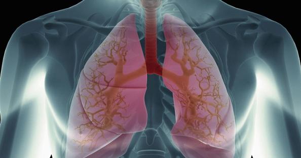 Πνευμονικό οίδημα: Προσοχή στα συμπτώματα – Τι πρέπει να κάνετε άμεσα