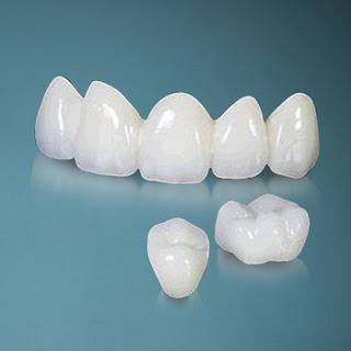 Bọc răng sứ quận 10 tại nha khoa uy tín Dr Ngọc q10