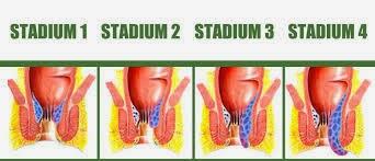 Stadium Ambeien Dan Wasir