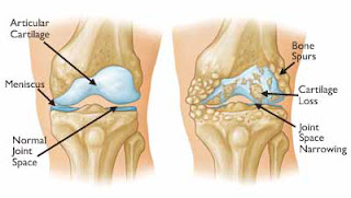 cara menyembuhkan osteoarthritis
