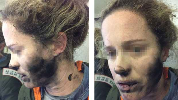 Head Phones Exploded In A Woman's Face During A Flight, Panic Ensued At The Plane
