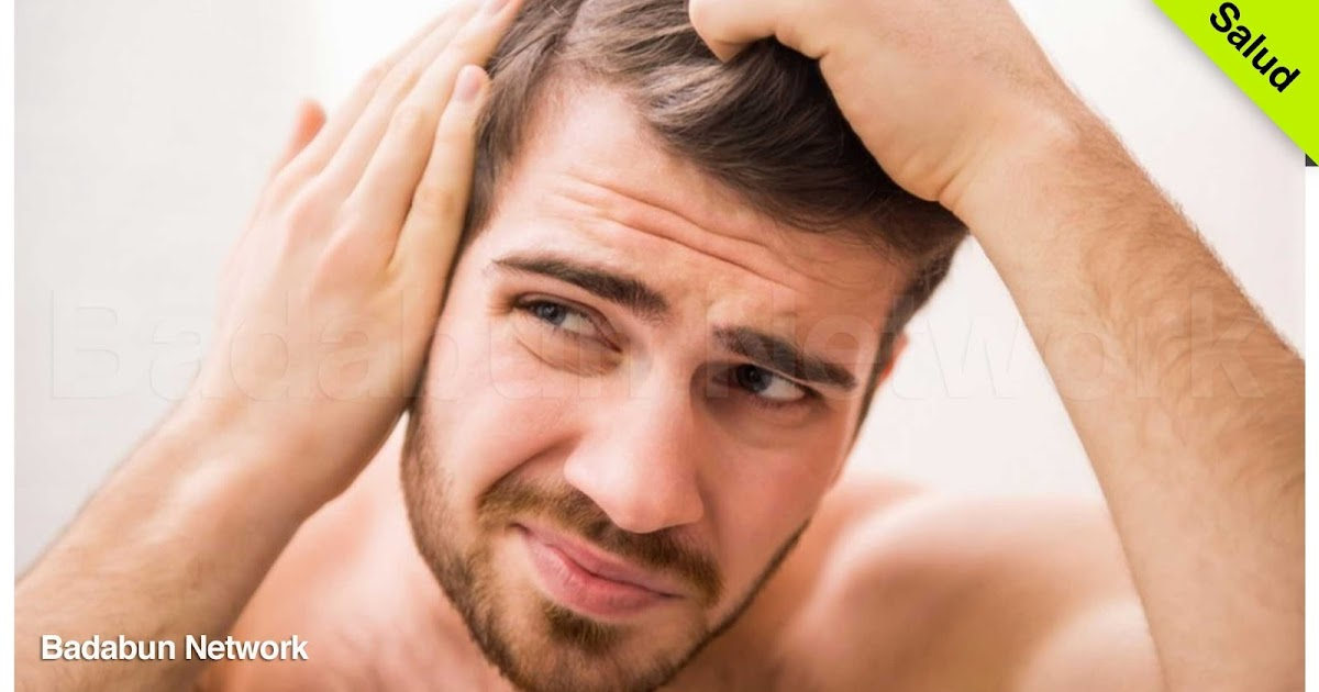 Calvo cabello pelo hombres trucos