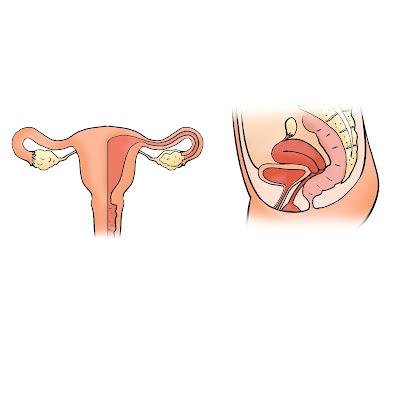 سرطان الرحم، اعراض سرطان الرحم، اسباب سرطان الرحم، Cervical cancer, Symptoms of uterine cancer, Causes of uterine cancer،