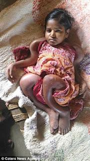 Wanita Usia 25 Tahun Di India Ukuran Badannya Seperti Bayi