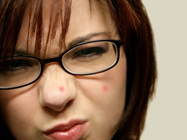 Prevent Acne Naturally