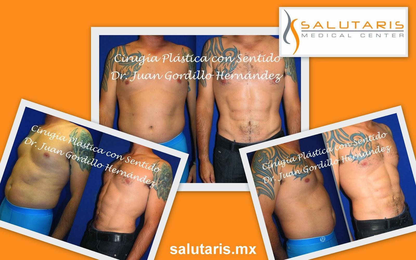 marcaje abdominal con lipolaser laser liposuccion precio costo guadalajara mexico
