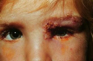 Penyakit Herpes Pada Mata