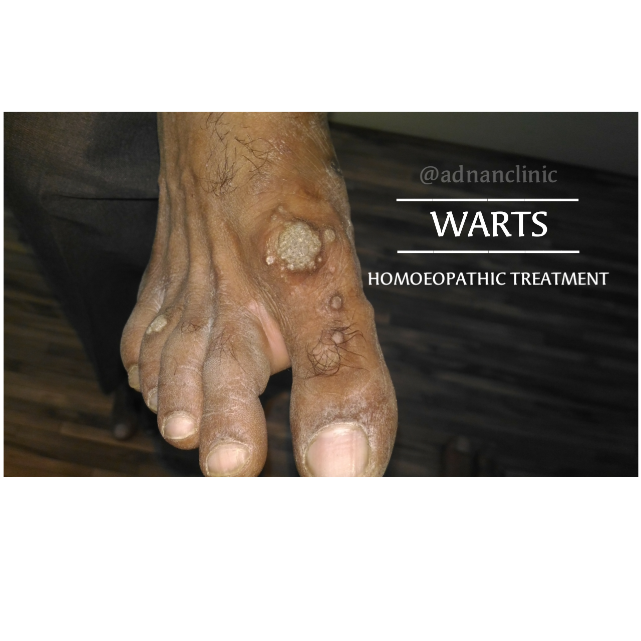 WARTS || ITS CAUSE || TYPES || SIGNS AND SYMPTOMS