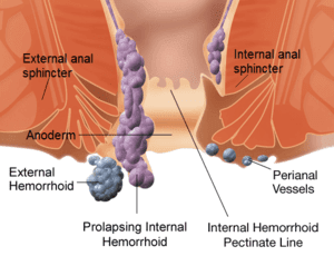 hemorrhoids_structure