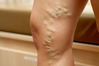 варикоз вен на ногах