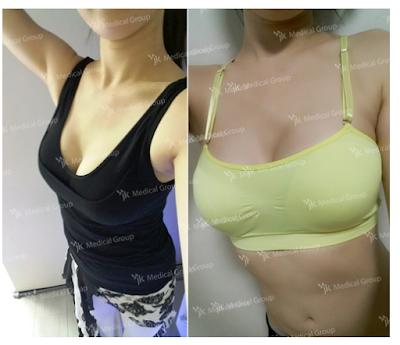 увеличение груди, маммопластика, где увеличить грудь в корее,  цены на пластику груди в корее