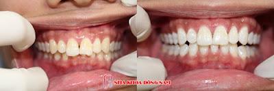mua thuốc tẩy trắng răng ở đâu chất lượng -3