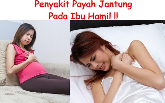 http://obatherbalpalingampuhdanefektif.blogspot.co.id/2017/10/obat-payah-jantung-untuk-wanita-hamil.html