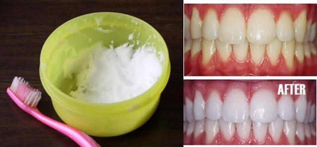 reteta pentru albit dinti cu bicarbonat