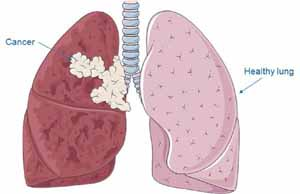 Several Types of Lung Cancer Treatment