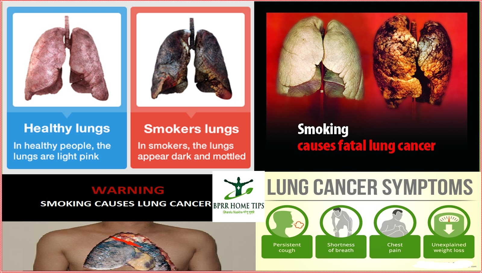 lung cancer in hindi lung cancer 234723752347233723642375 23252366 23252376230623602352 lung cancer in hindi lung cancer stages