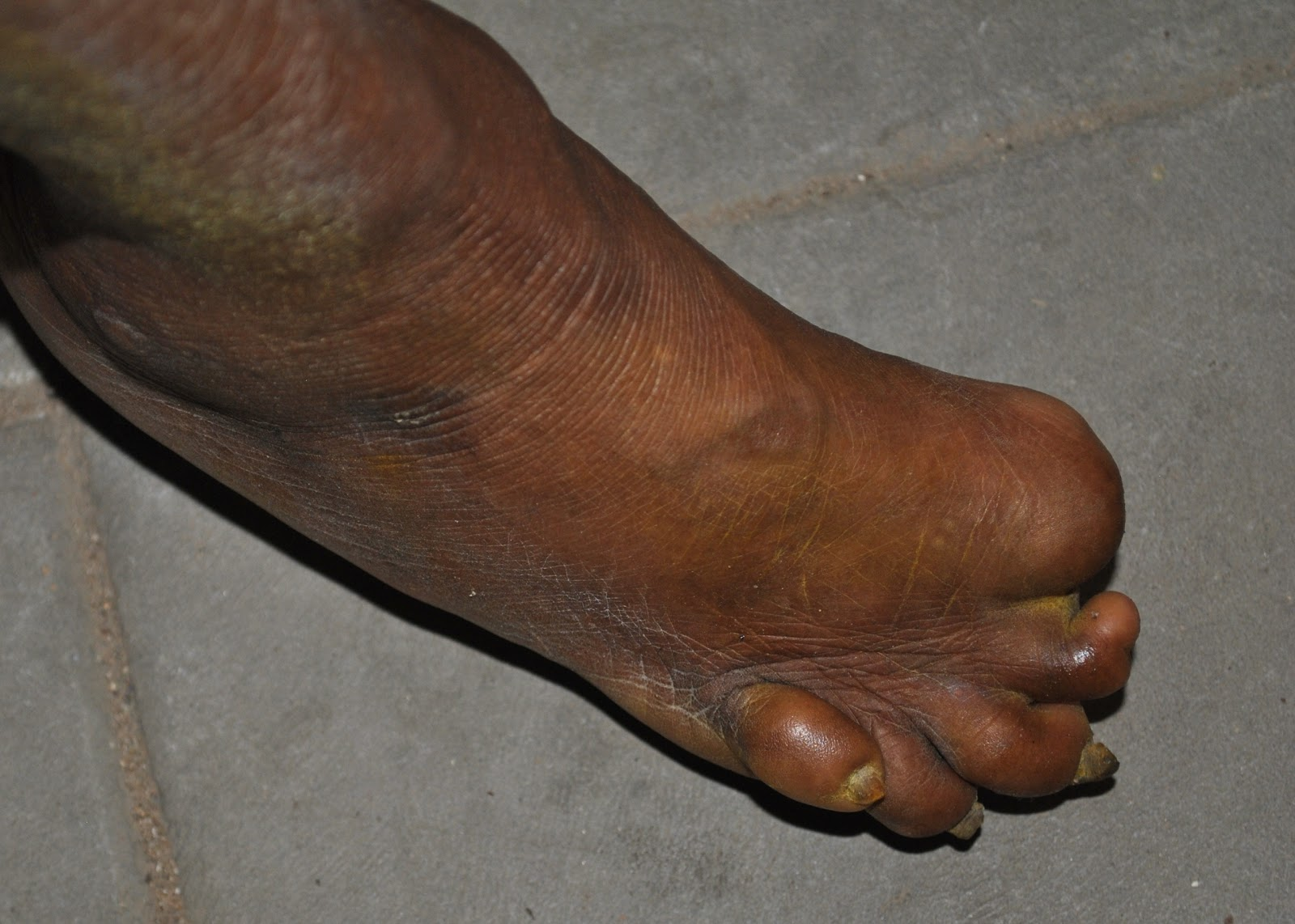 Bilderesultat for leprosy foot