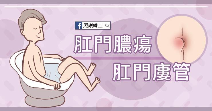 不僅痔瘡會讓你屁股痛 – 肛門膿瘍和廔管(懶人包)